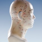 The Ultimate Guide to the Acupuncture Point on Head for Headaches