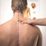 How to Treat a Herniated Disc With Acupuncture & TCM