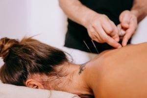 acupuncture epileptic seizures