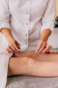 Acupuncture Rheumatoid Arthritis